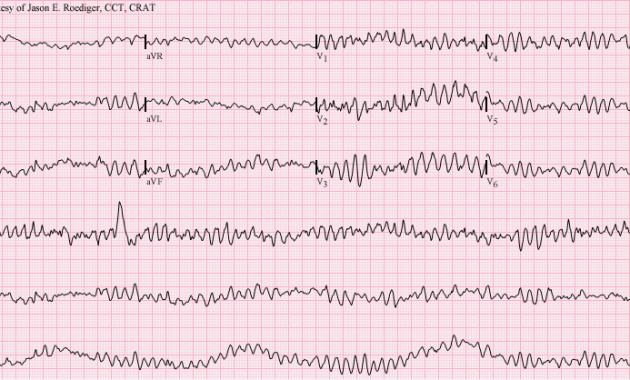 Ventricular_fibrillation